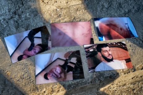 Some pictures of 39-year-old award-winning Syrian bodybuilder, Ibrahim Shehabi, being beaten up by Assad's agents in prison, then showing his scarred back and after his release in 2013. During his detention, Ibrahim managed to steal a mobile phone from a soldier who used to photograph him while he was being tortured. At the time of his release, obtained through an exchange of prisoners, Ibrahim hid the SIM card in his mouth to take the evidence out of the jail. Istanbul, Turkey 2016. © Matteo Bastianelli